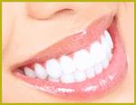 Clareamento dos dentes é na Multioral