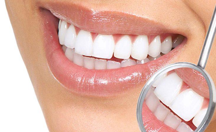 Odontologia Estética - Clínica Multi Oral