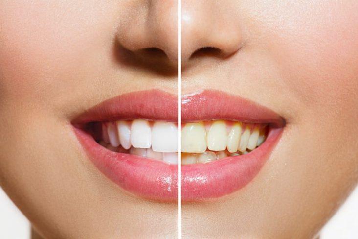 Como evitar dentes amarelados - Clínica Multi Oral