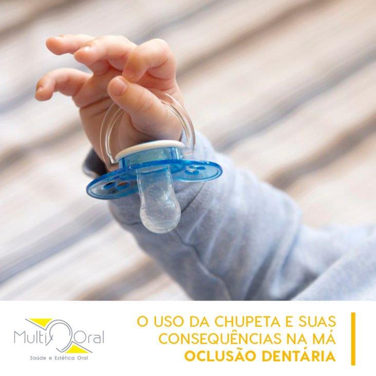 Mão de criança segurando uma chupeta
